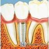 Стоматология Протезирование, имплантация зубов